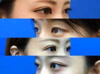 Blepharoplasty Asian Eyes Photo
