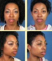 Blepharoplasty Before And After African American Picture