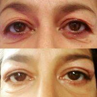 Blepharoplasty For Droopy Eyelids Before And After Pic
