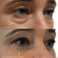 Blepharoplasty Is Surgery For Bags And Dark Circles Under The Eyes