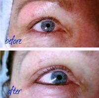 Blepharoplasty Reduces The Morning Swelling