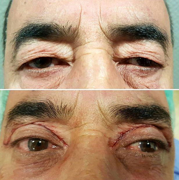 Blepharoplasty Surgery Can Be Performed On Upper Eyelids, Lower Eyelids, Or Both