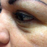 Blepharoplasty Surgery Can Help You Look Younger