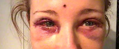 Eyelid surgery before and after recovery » Eyelid Surgery ... |Lower Blepharoplasty Recovery Photos