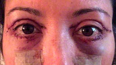 Eyelid Surgery – Plastic Surgery |Lower Blepharoplasty Recovery Photos