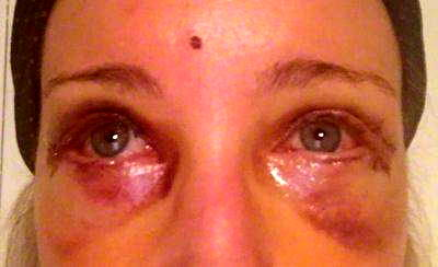 Blepharoplasty Recovery Pictures Eyelid Surgery Cost Photos