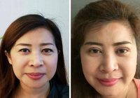 Double Eyelid Surgery Procedure Before After Pic