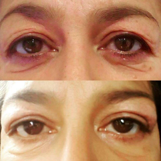 Eye Bag Removal Before And After Pic