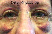 Eye surgery blepharoplasty recovery day 4 post op
