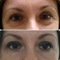 Eyelid Surgery For Droopy Or Baggy Eyelids