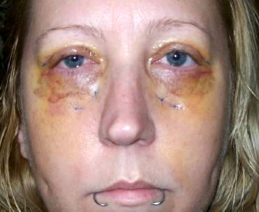 6 weeks lower Bleph | Plastic Surgery, Answers, Questions |Lower Blepharoplasty Recovery Photos