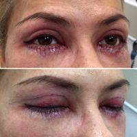 Get Blepharoplasty And Look Younger