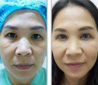 Korean Eyelid Surgery Before After Picture