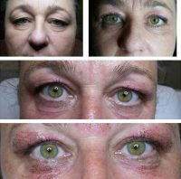Look Younger With Blepharoplasty
