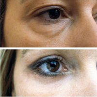 Lower Eyelid Surgery Before And After Pic
