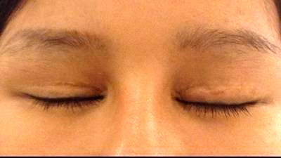 Recovery After Eyelid Surgery » Eyelid Surgery: Cost, Photos