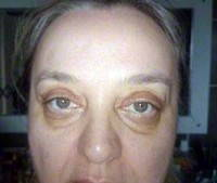Recovery from eyelid surgery black eyes