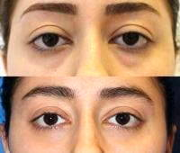 Surgery For Excessive Drooping And Sagging Of Skin Around Eyes