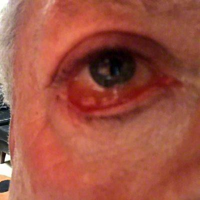 Blepharoplasty Recovery Day By Day Eyelid Surgery Cost Photos