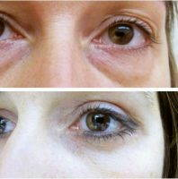 Transconjunctival Lower Eyelid Blepharoplasty Before After Photo