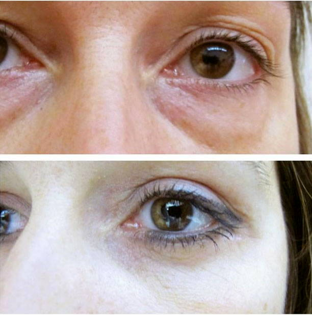 Transconjunctival Lower Eyelid Blepharoplasty Before After Photo