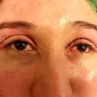 What Is Upper Blepharoplasty Picture