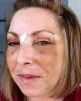 Blepharoplasty and brow lift recovery photos