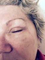 Scars after eyelid surgery image