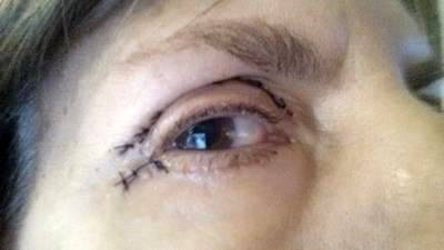 Scars after eyelid surgery » Eyelid Surgery: Cost, Photos ...