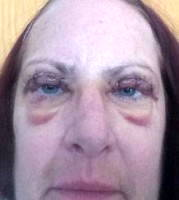 Stitches after blepharoplasty recovery