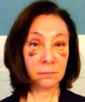 Upper blepharoplasty or brow lift image