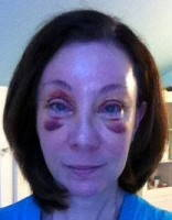Upper blepharoplasty or brow lift surgery
