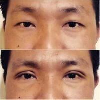 Asian Blepharoplasty Procedure Before And After