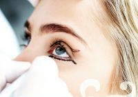 Blepharoplasty Is A Surgery To Remove Skin And To Add Or Remove Fat From The Eyelids