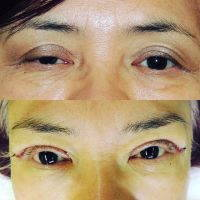 Female Upper Blepharoplasty Photo Before And After