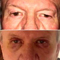 Lower Blepharoplasty Can Involve Skin Incisions Directly Below The Lash Line