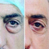 Male Upper Blepharoplasty Before And After Picture
