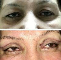 Upper Lid Blepharoplasty Before And After Image