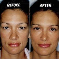 Austin Eye Lift Plastic Surgery » Eyelid Surgery: Cost