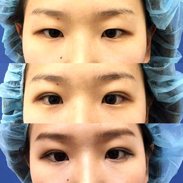 Double Eyelid Surgery In Austin Texas Pictures Before And