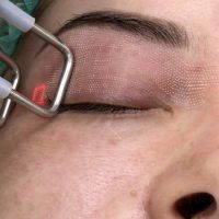 Laser Vs Scalpel Blepharoplasty » Eyelid Surgery: Cost