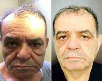Male Lower Blepharoplasty Before And After Photos