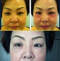 Asian Blepharoplasty Reviews