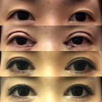 Asian Blepharoplasty Cost » Eyelid Surgery: Cost, Photos