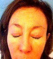 Surgery For Sagging Eyelids in Birmingham