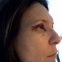 Eye Lid Lift in Mexico
