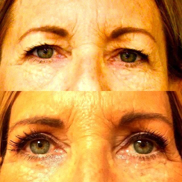 Bottom Eyelid Surgery in FL