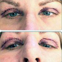 Cosmetic Surgery Eye Lift In India » Eyelid Surgery: Cost