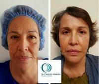 Top 50 Blepharoplasty Surgeons » Eyelid Surgery: Cost, Photos