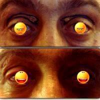 Eyelid Fold Surgery In Canberra, Australia » Eyelid Surgery: Cost